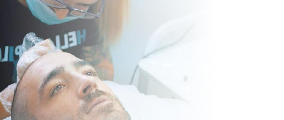 tratamiento alopecia marbella