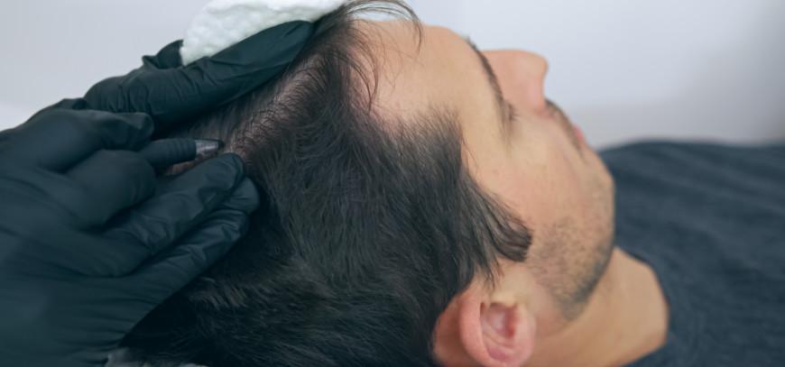 tratamiento alopecia torremolinos
