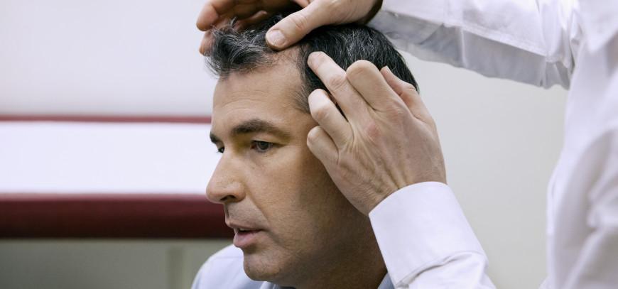 tratamiento alopecia fuengirola